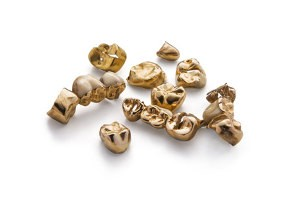 Vendre de l'or dentaire à Freiburg à Edelmetalle direkt